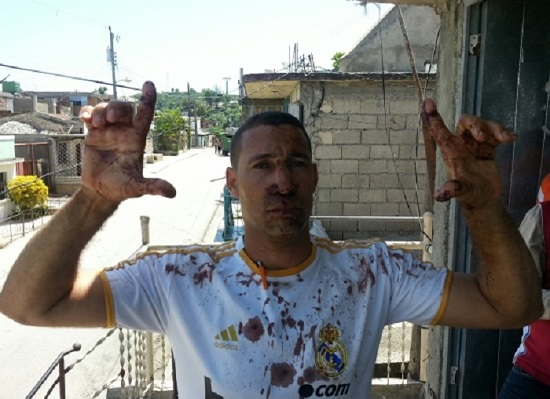 Yriade Hernández Aguilera, a member of UNPACU, was one of the dissidents severely beaten by Castro's police